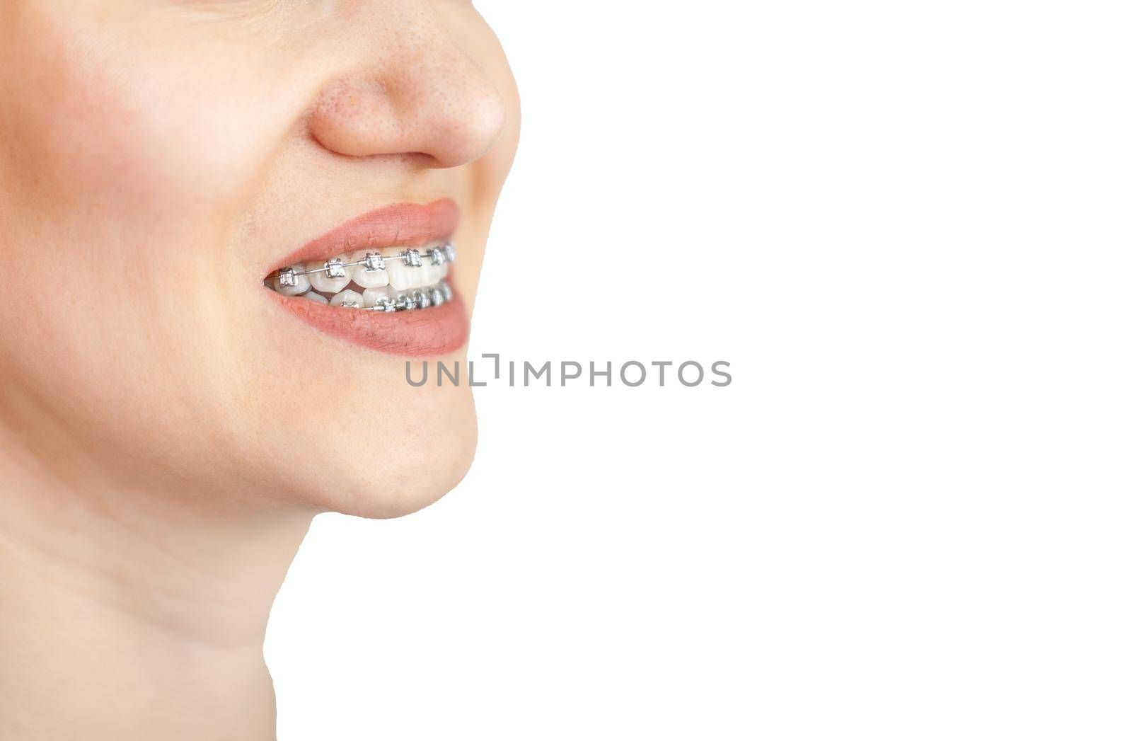 The smile of a young girl with braces on her white teeth. Teeth straightening. by AnatoliiFoto