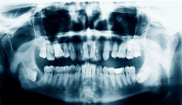 Xray scan of the teeth